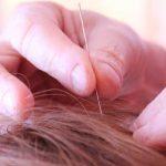 Acouphène Acupuncture