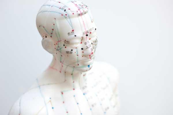Acouphène et acupuncture