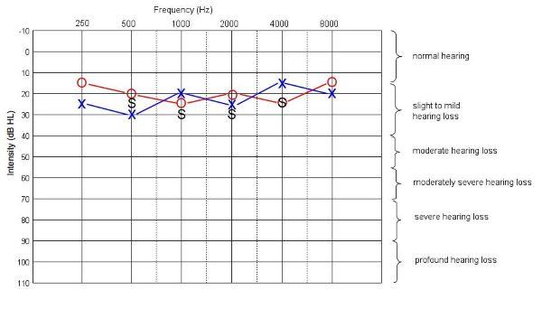 Audiogramme Test Auditif Pour Identifier Un Acouphene